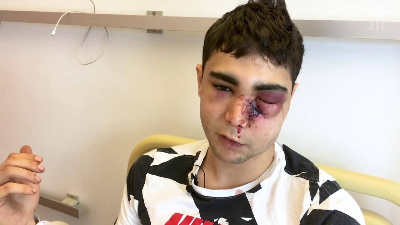 Un jeune tabassé par des policiers : il témoigne
