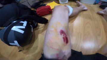 blessure-journaliste-gaspard-gla